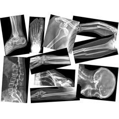 ROYLCO BROKEN BONES X-RAYS